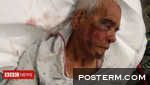 Mexican grandfather 'assaulted with brick'